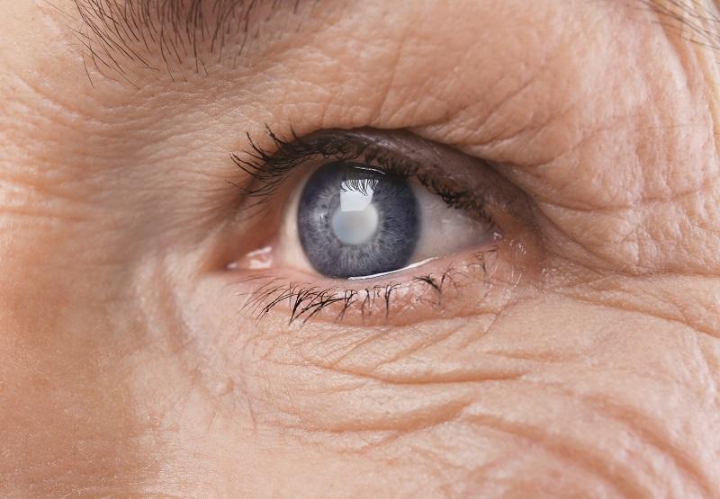 aging eye damage cataracts